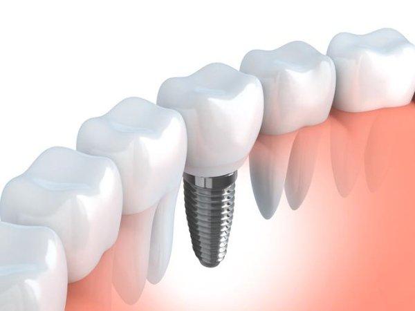 impianto fisso o mobile dentale