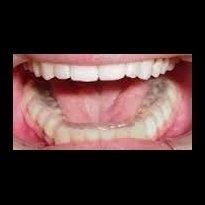foto interno bocca