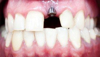 smile treatment