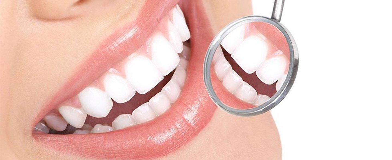 paziente si controlla i denti con lo specchietto da dentista