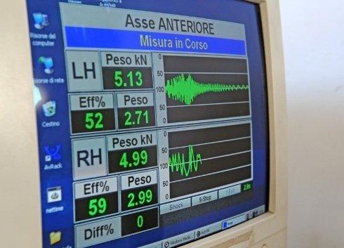 un monitor con le immagini di una misurazione in corso di un asse anteriore