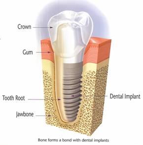 Dental Implants in Morris Plains, NJ
