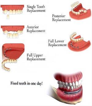 Dental Implants in Cedar Knolls, NJ