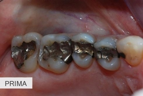 otturazione carie, igiene orale, devitalizzazione denti