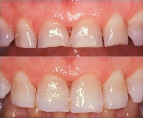 stetica dentale; igienisti dentali; protesi dentarie