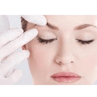 Chirurgia plastica del volto