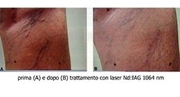 laser transdermico