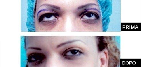 trattamento zona oculare