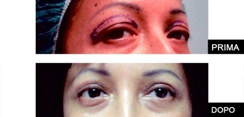 ringiovanimento del tratto oculare