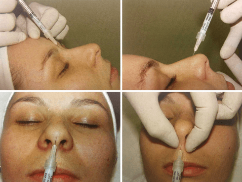 Rinoplastica non chirurgica
