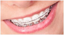 apparecchi per la correzione dei denti