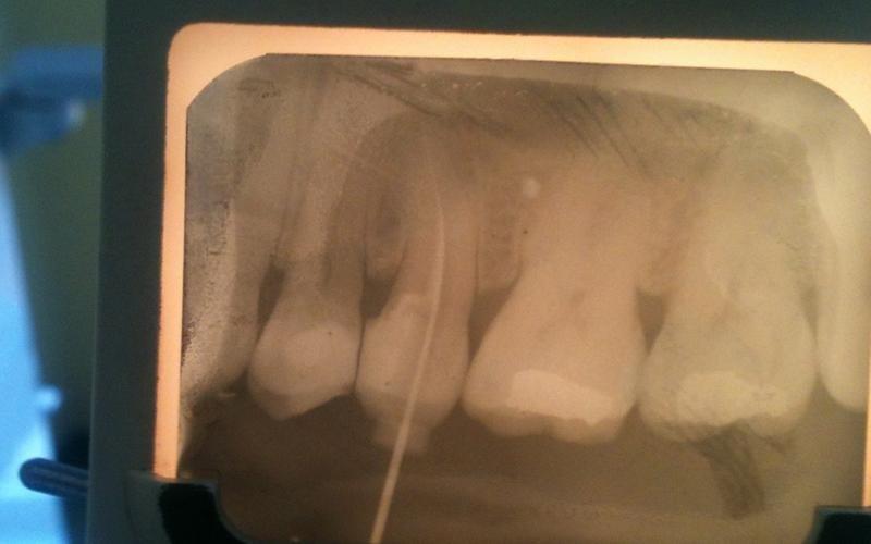 radiografia dei denti messina