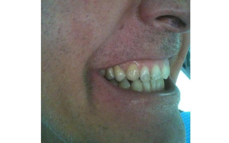 realizzazione protesi dentarie fisse messina