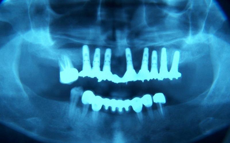 implantologia messina