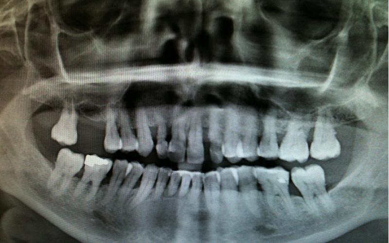 realizzazione impianti dentali messina