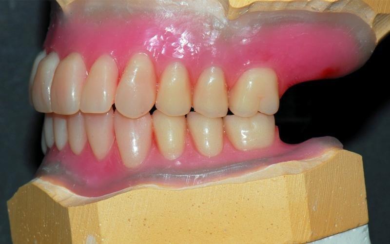 realizzazione protesi dentarie messina
