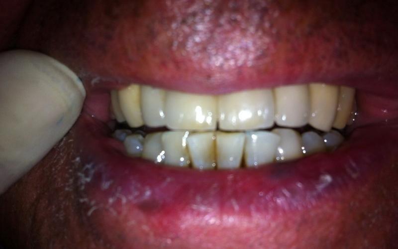 interventi dentali messina