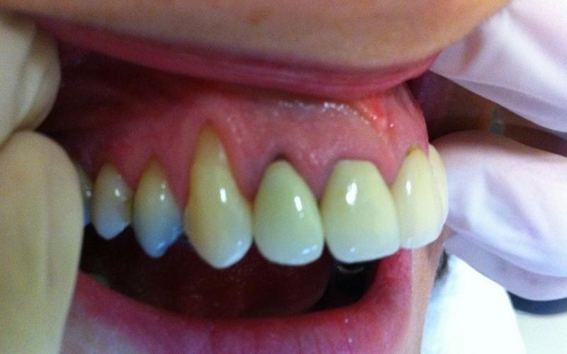 cure parodontiche messina