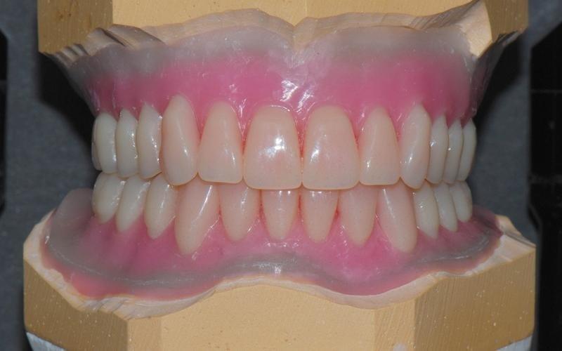 protesi dentarie anziani messina