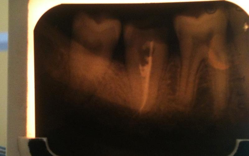 trattamenti dentali messina