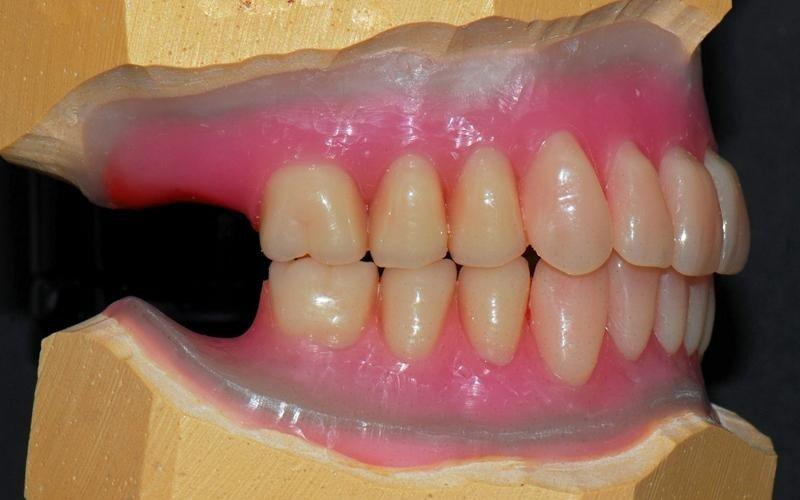 realizzazione protesi dentarie adulti messina