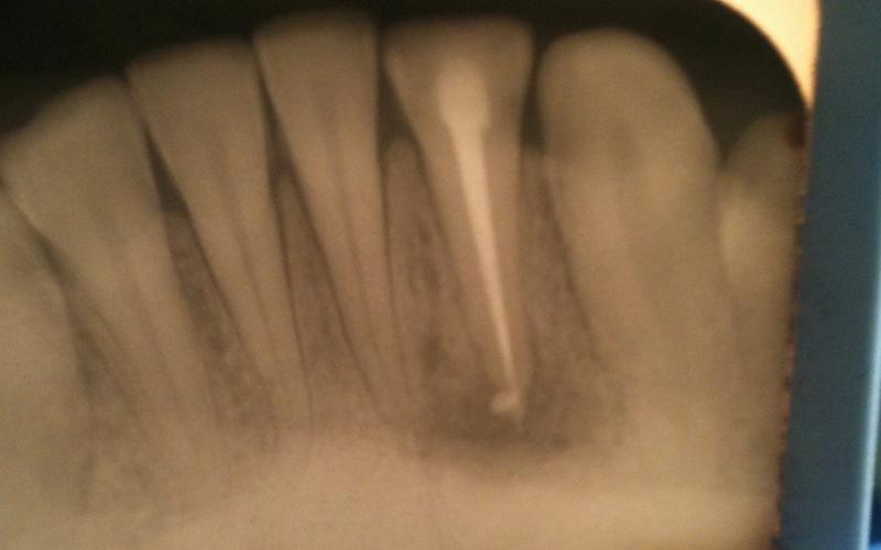 endodonzia adulti messina