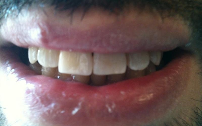 protesi dentali fisse messina