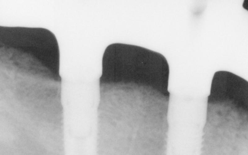 dettaglio radiografia dentale messina