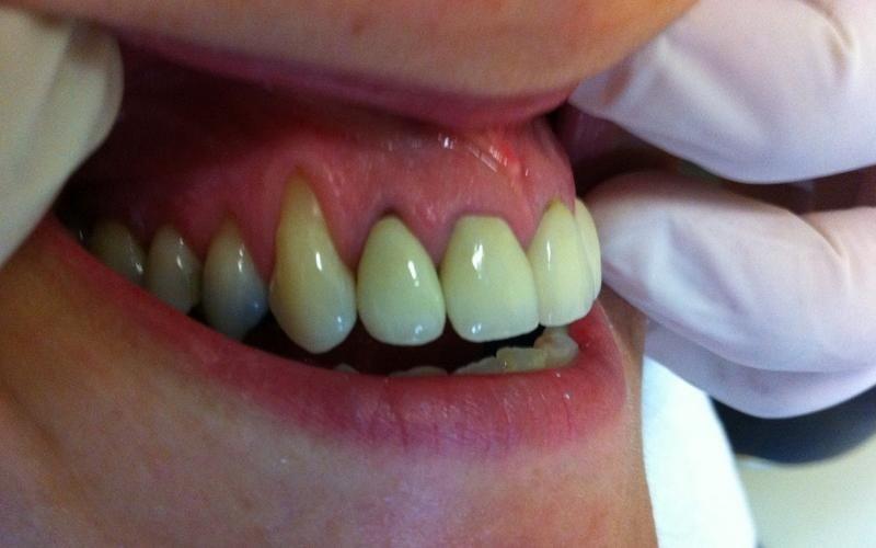 terapia parodontica messina