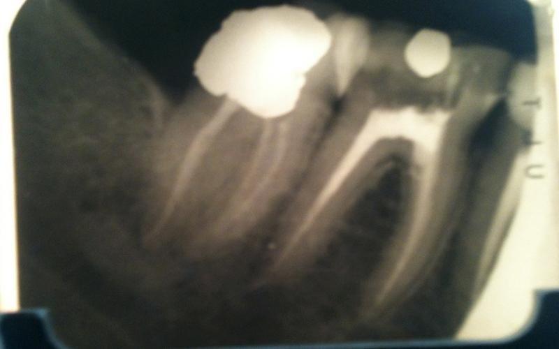 terapie endodontiche messina