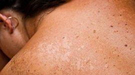 visite controllo nei, trattamento psoriasi, malattie della pelle