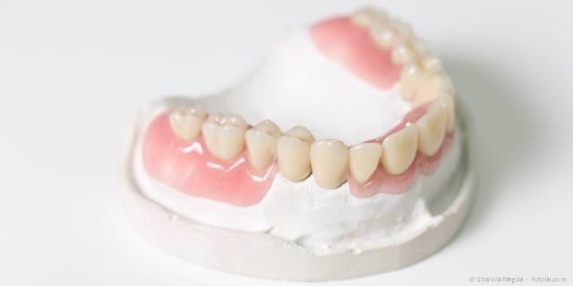 Teilprothesen, wenn viele Zähne fehlen