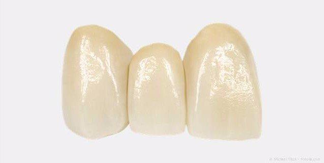 Zahnbrücken bei kleinen Zahnlücken, wenn wenige Zähne fehlen
