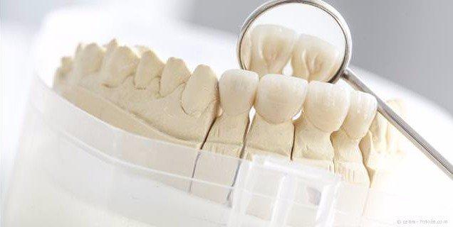Zahnkronen aus Keramik