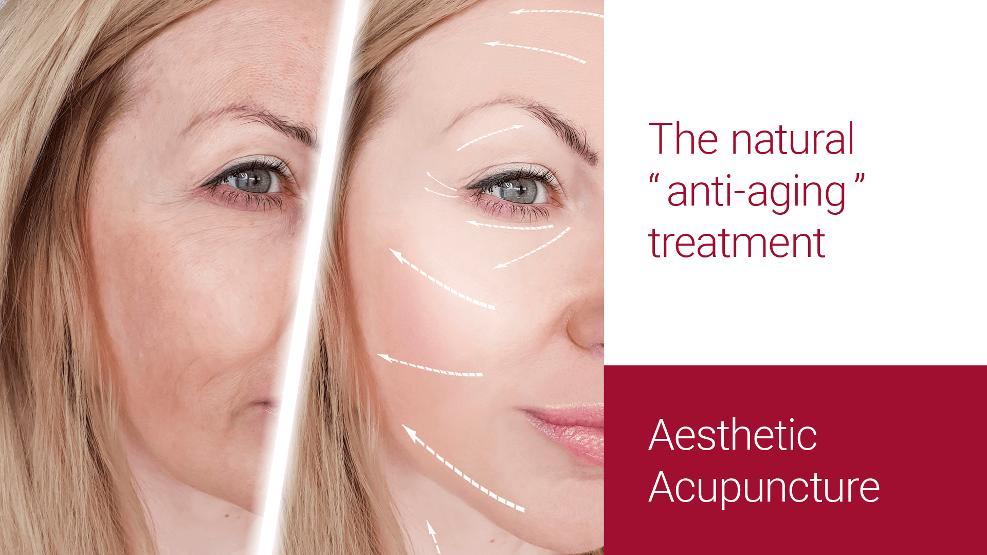 Aesthetic Acupuncture A Natural Anti Aging Treatment