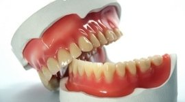 protesi fisse, protesi mobili, creazione dentiere