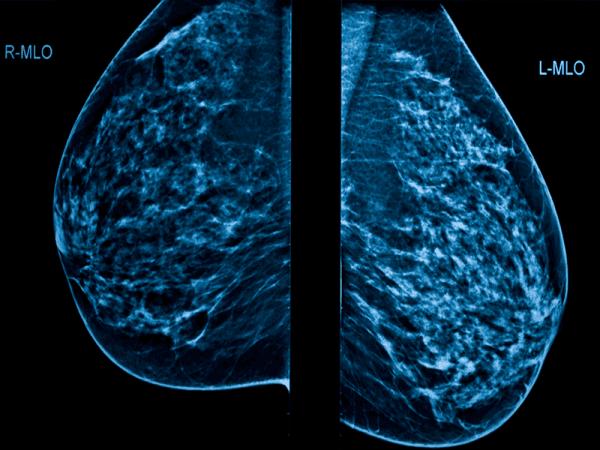 radiografia mammografica moc
