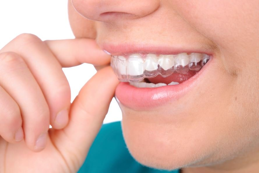 Invisalign Dentist Amherst, NY