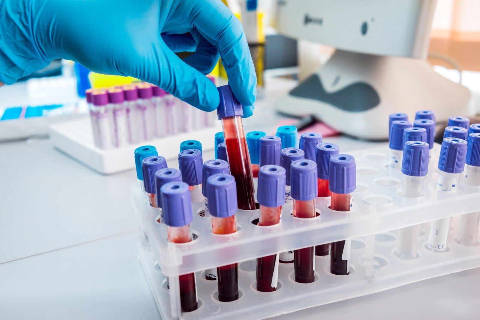 Apparecchiature mediche. Test di sangue