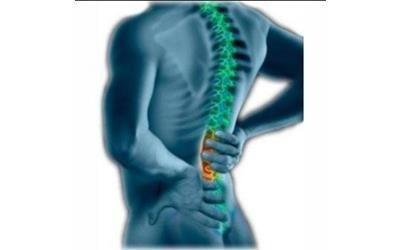 Cura efficace di una malattia di una spina dorsale