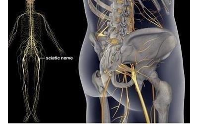 sciatica Cerino DR. Alessandro