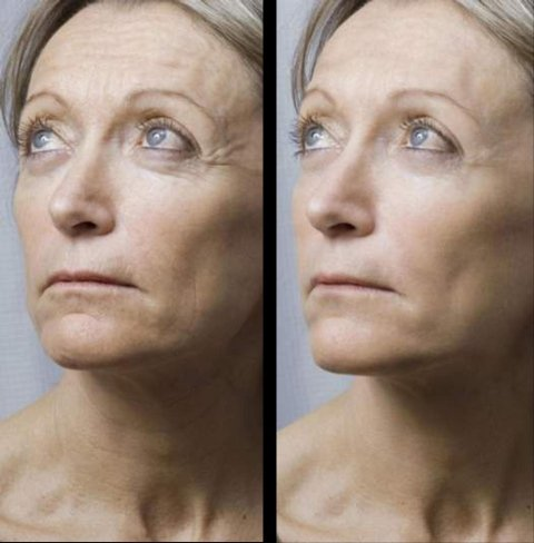 prima e dopo trattamento viso
