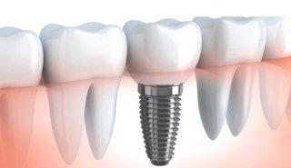 dentisti albani