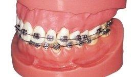 apparecchi dentali, protesi dentali, implantologia