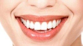 detartrasi, pulizia dei denti, dentisti specialisti