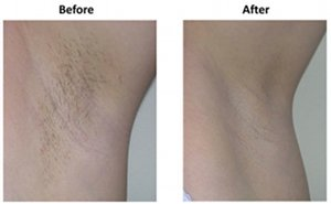 Hair removal on back