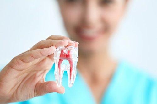 modello di dente con gengiva