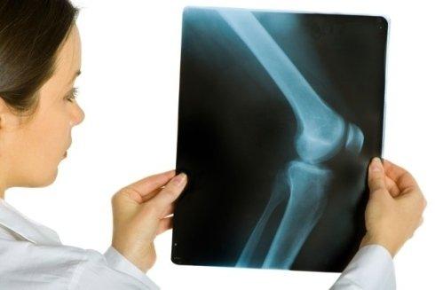 presso la struttura si possono effettuare interventi di chirurgia protesica