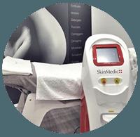 depilazione-laser-definitiva