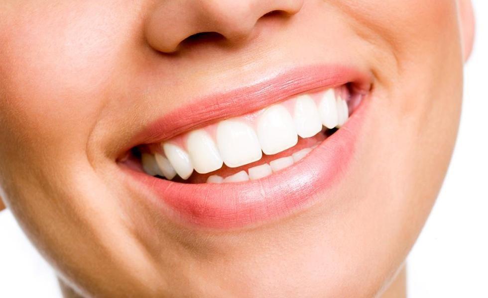 offerta sbiancamento denti roma